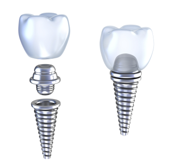 Graphic of Dental Implants